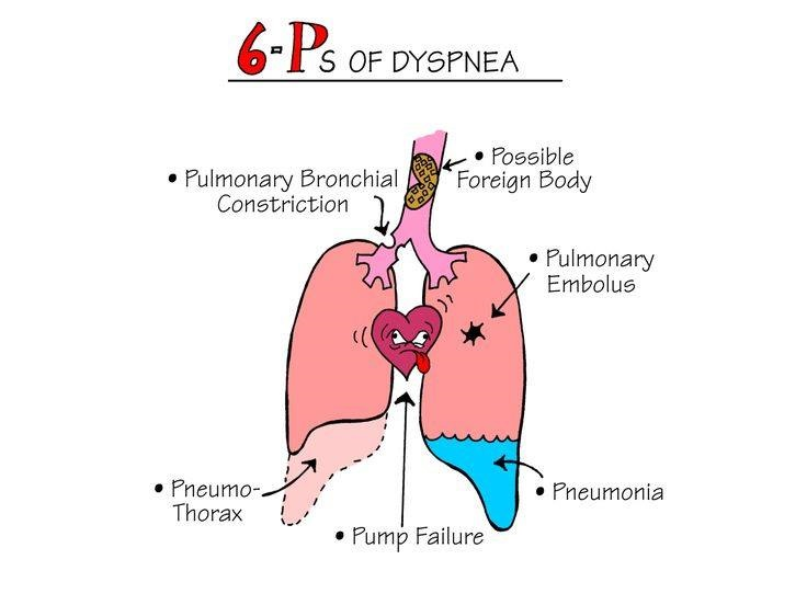 Nursing Mnemonics 6 Ps Of Dyspnea