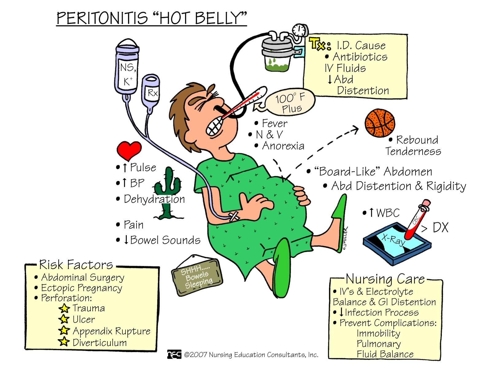 Peritonitis - what is it Peritonitis: causes, symptoms, diagnosis, treatment 28