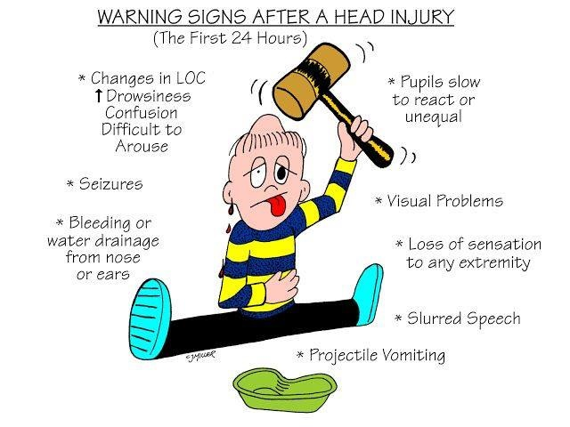 Nursing Mnemonics: Warning Signs After A Head Injury - StudyPK