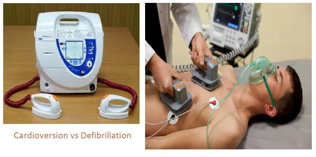Cardioversion Vs Defibrillation Studypk