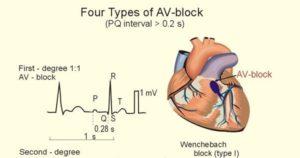 Four Types of AV-Block