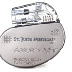 Abbott's tiny wireless pacemaker is now MRI-compatible