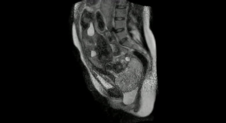 MRI Of Childbirth Shows Miracle Of Life From The Inside Out
