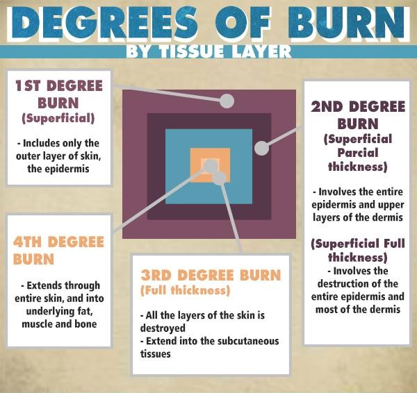 Degree Of The Ocean And Efficient N: Infographic: Degrees Of Burn By Tissue Layers