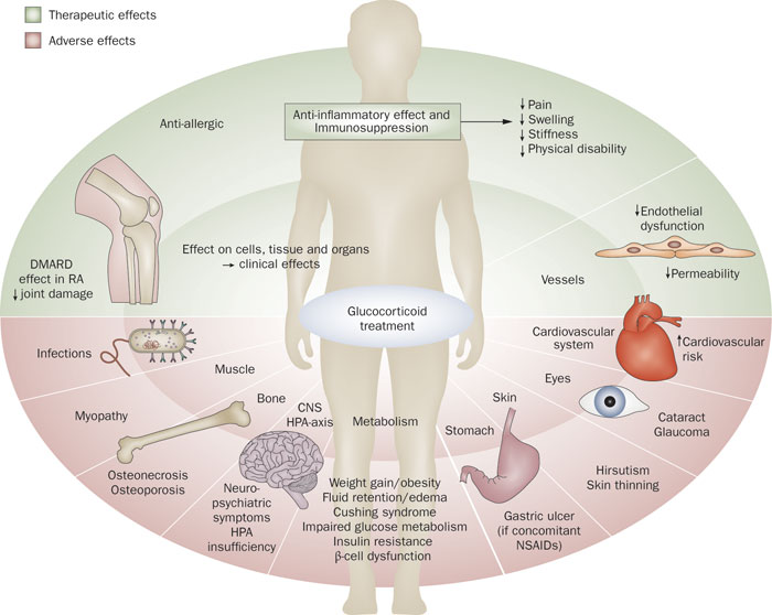 Adverse effects of Glucocorticoids