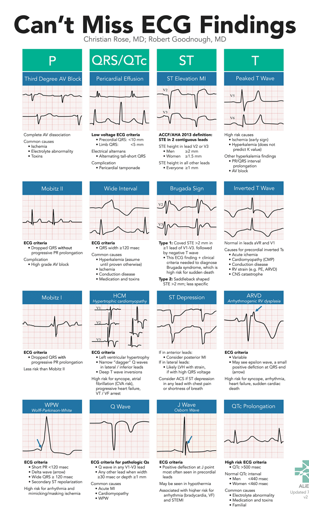 Can't Miss ECG Findings Cards for the Emergency Medicine Provider