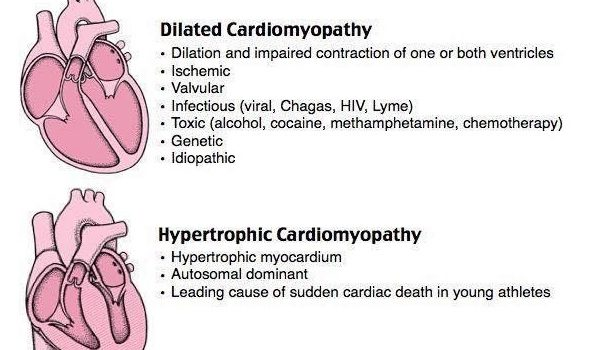Cardiomyopathy Types Mnemonics Cheat Sheets for Nursing Students