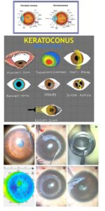 Normal Cornea vs Stages of Keratoconus Cheat Sheet