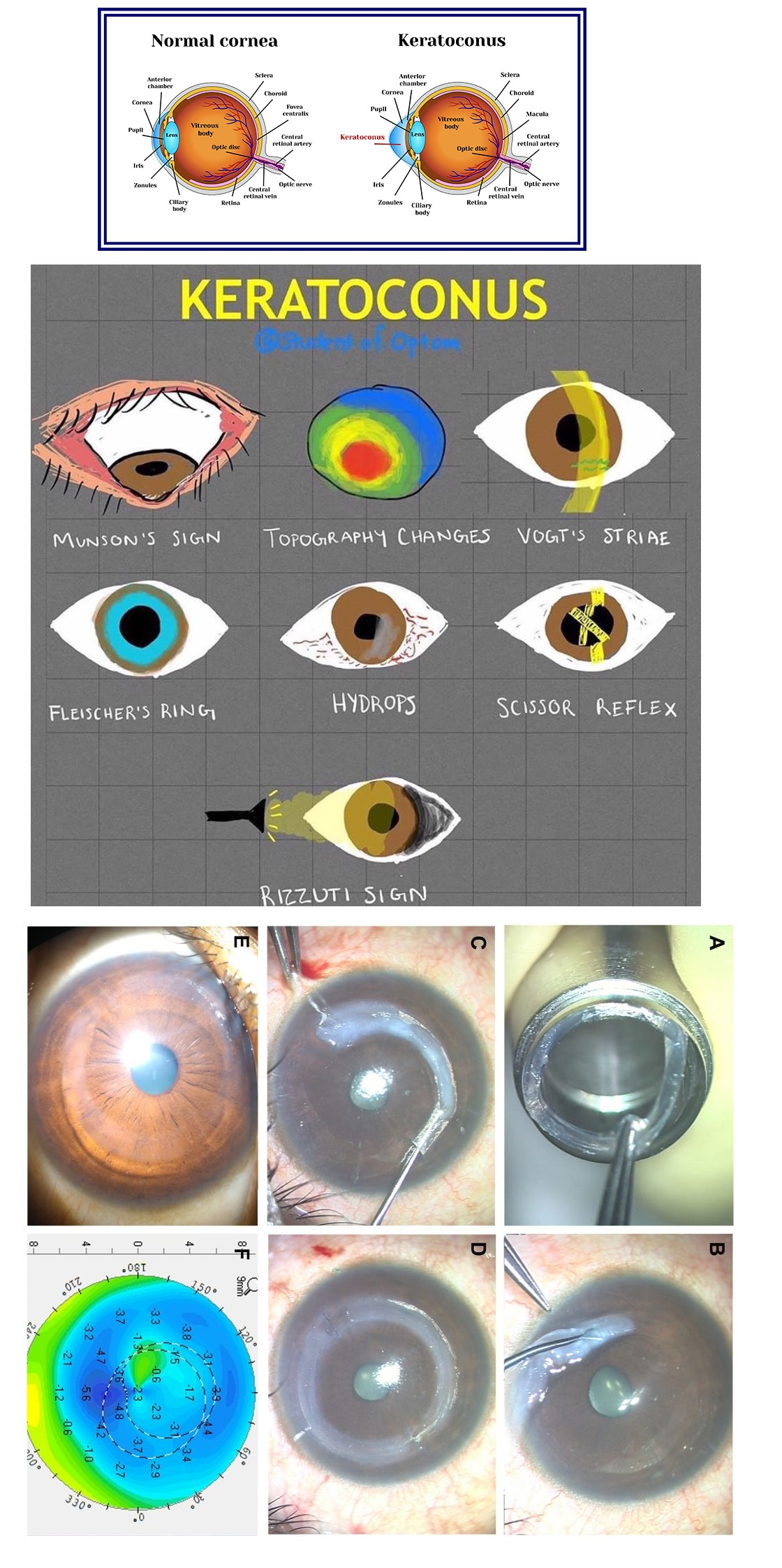 Normal Cornea vs Stages of Keratoconus Cheat Sheet