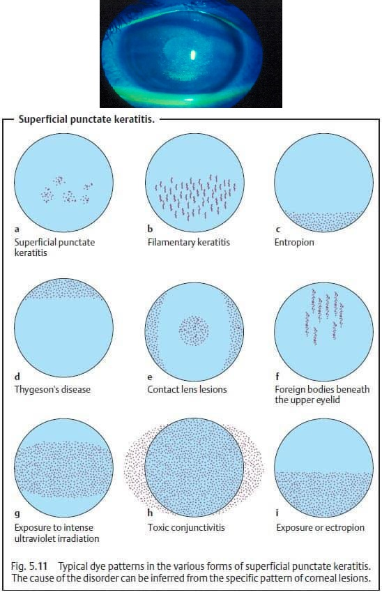 Superficial Punctate Keratitis Treatment Eye Disorders