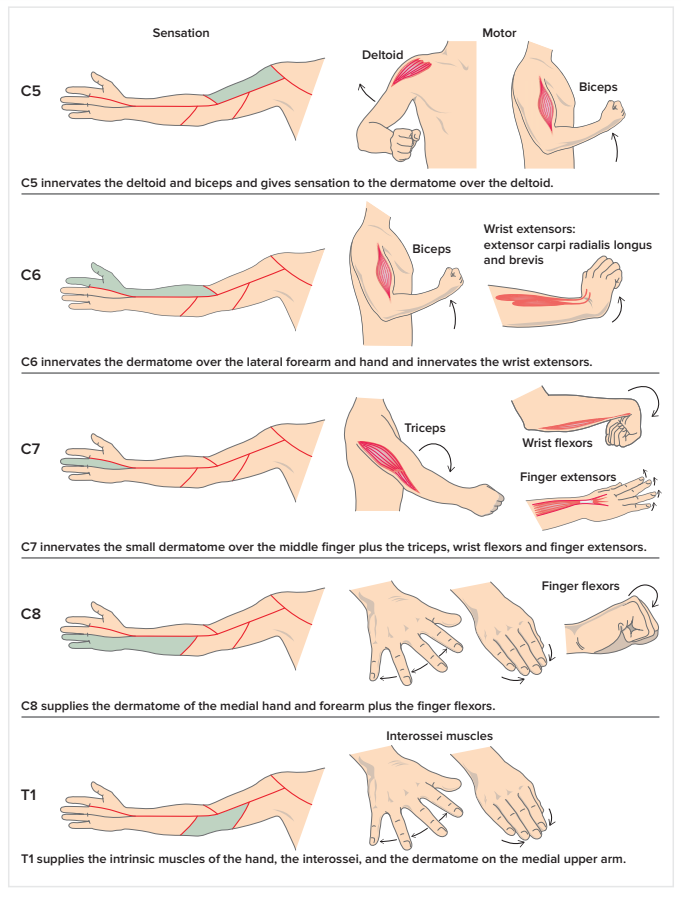 C5 C6 Cervical Radiculopathy (Pinched Nerve) Stretches & Exercises