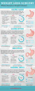 Bariatric Surgery Comparison Infographic What is the best weight loss surgery